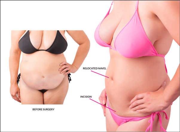 Tummy Tuck Surgery- Flatenning Your Fat Concerns